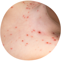 ithchy spotty chickenpox rash